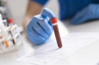 Picture of antibody blood test in a vial